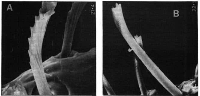Fig. 9- Aspecto del contorno de las cerdas pronotales laterales en Cimex (2.000x) A – C. lectularius B – C. hemipterus