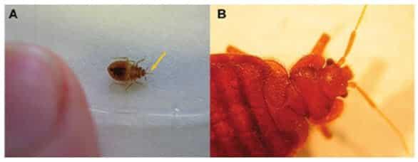 Figura 2. Apariencia física de las chinches (Cimex lectularius). Las chinches son artrópodos hematófagos que se asemejan a pequeño confeti, de color marrón, plano y ovalado. A. Una chinche ninfa; observar la unidad de mordida en frente de la cabeza (flecha), que normalmente se pliega debajo de la cabeza en el adulto. B, chinche adulta.